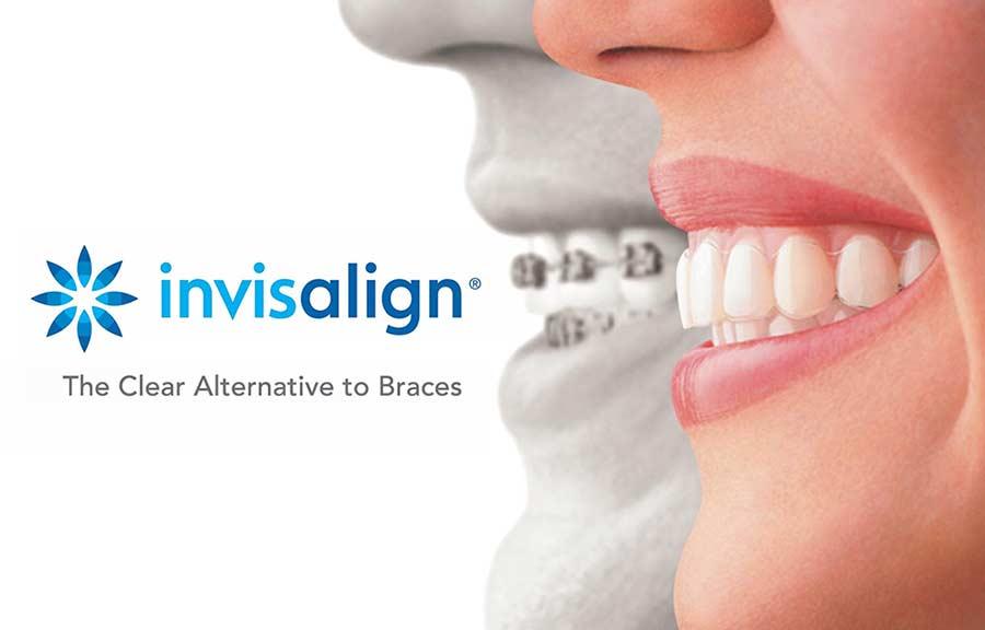elegir ortodoncista
